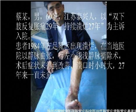 郑州市管城中医院脉管炎科脉管炎患者蔡某的康复经历